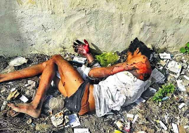 Rights body issues notice to Bihar govt over burn patient thrown into garbage dump