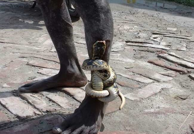 Indian villager walks up hospital with snake coiled around leg