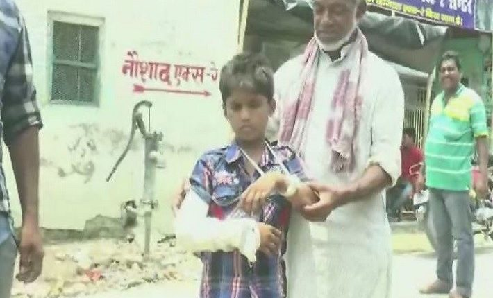 Height of negligence: Bihar boy fractures left arm, doctors cast plaster on the right!